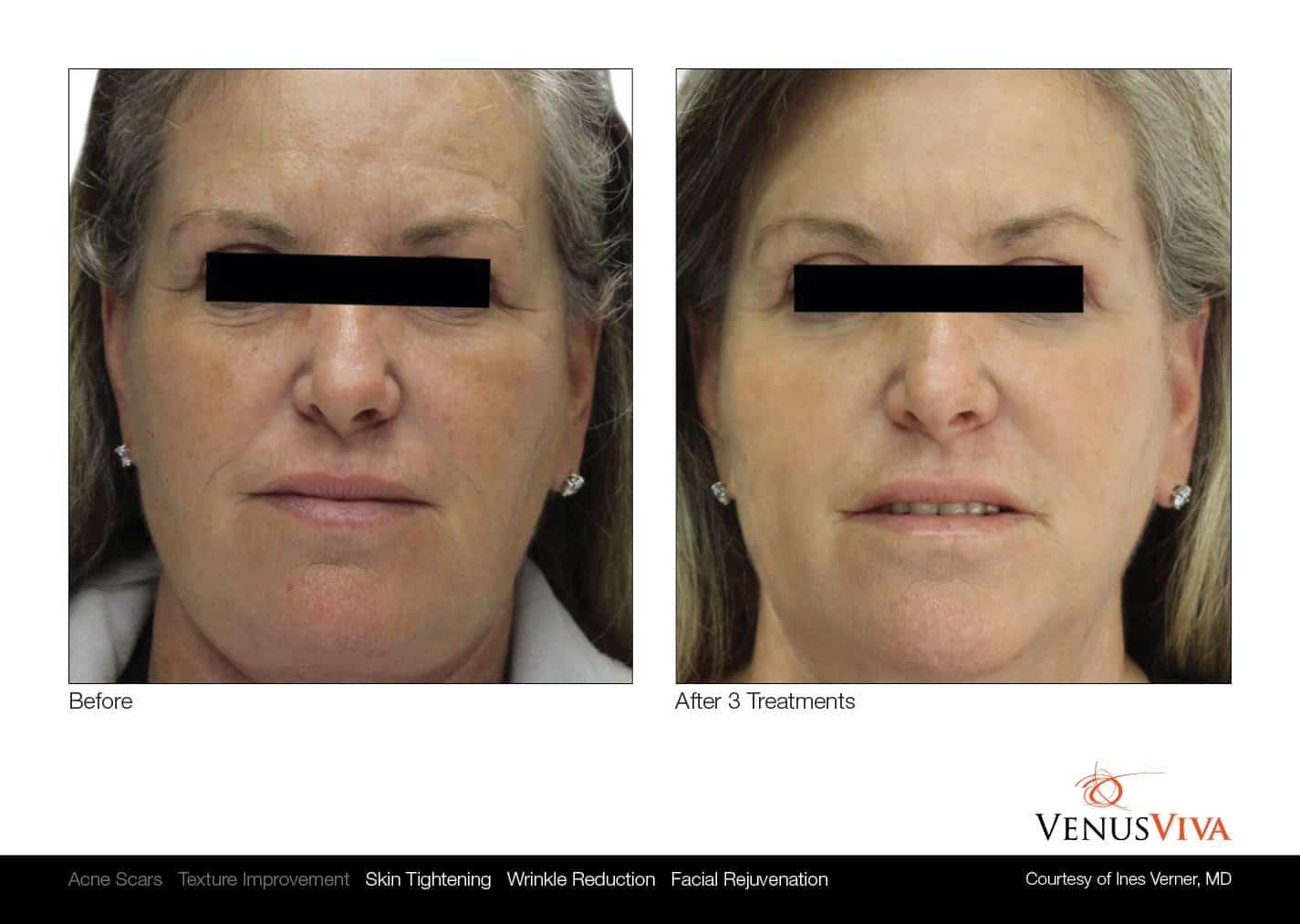 טיפולי פנים - - VENUS CONCEPT
